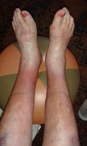 Jalat hoidon jälkeen.